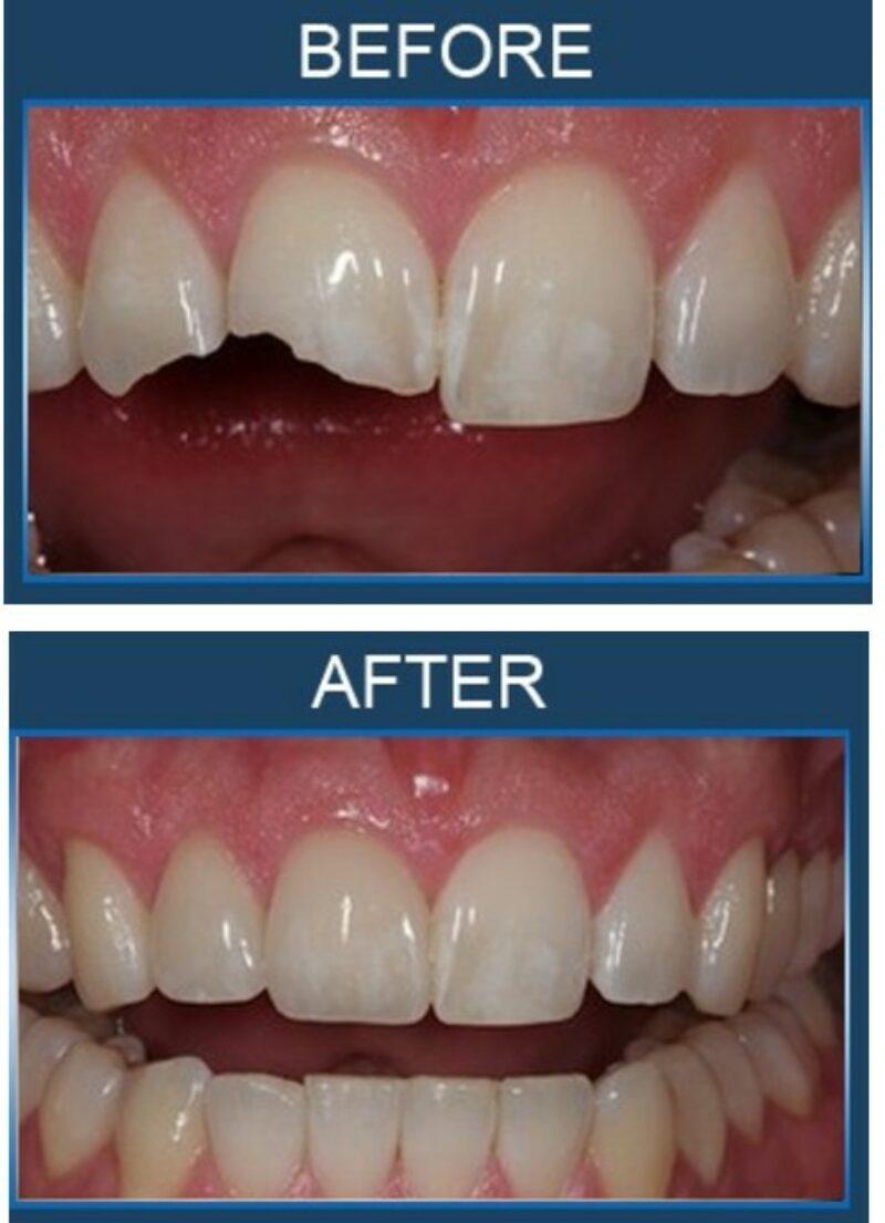 teeth123